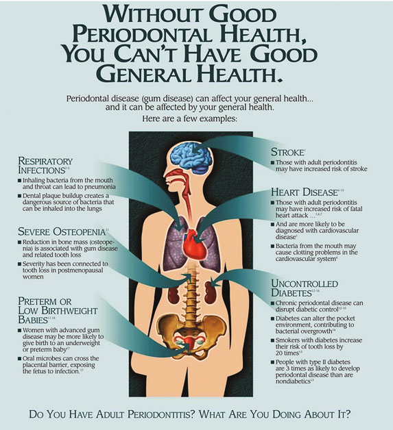 Diagram of human body in relation to periodontal health from office of periodontist in Chandler, AZ.