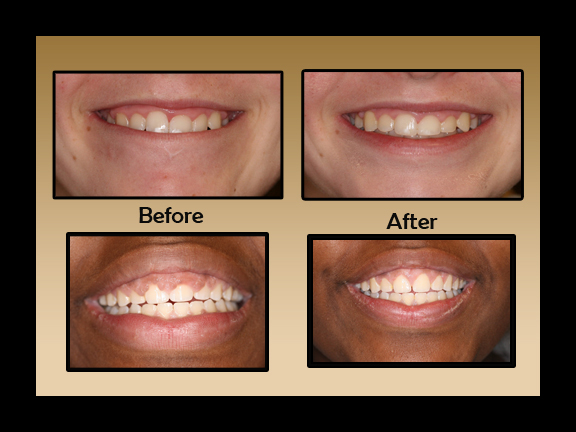 Gingivectomy before and after photos by periodontist in Chandler, AZ.