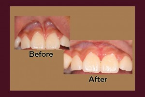Frenectomy before and after pictures by periodontist in Chandler, AZ.