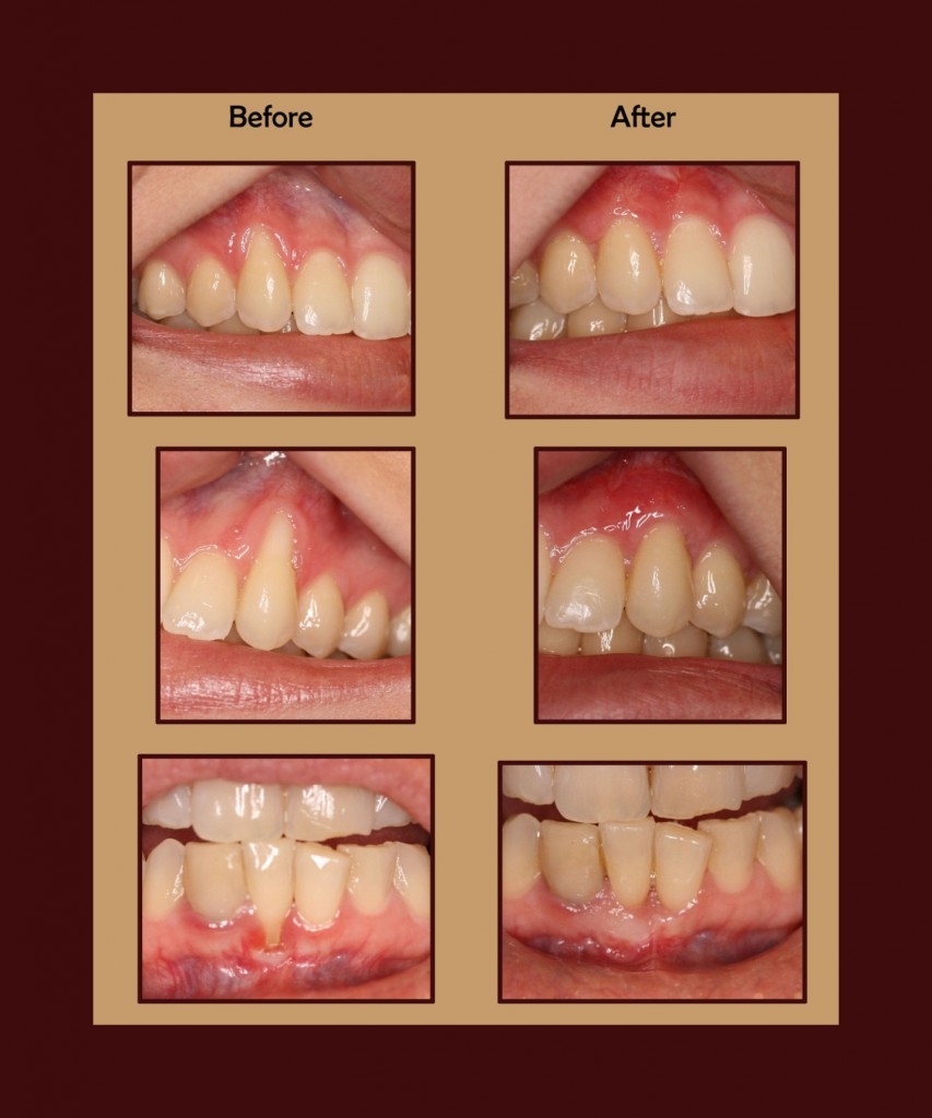 Before and after images of gum grafting performed by a periodontist in Chandler, AZ.