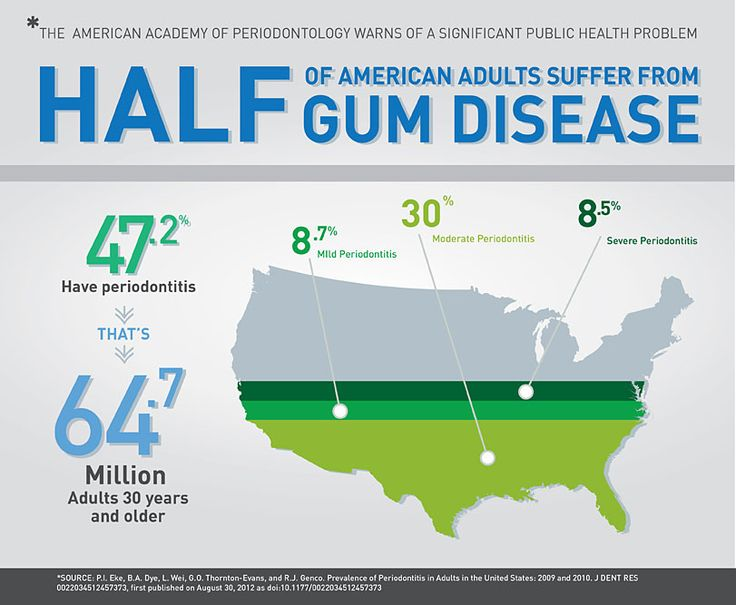 Infographic of gum disease in the U.S., from periodontist in Chandler, AZ.