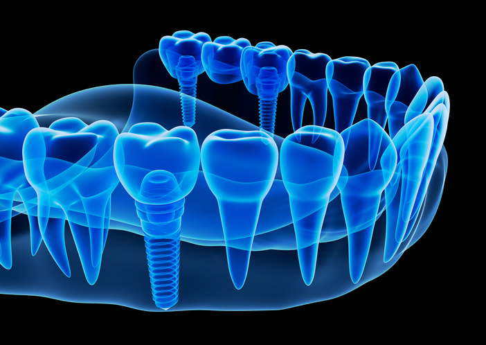 An image of a Dental Implants in Chandler Arizona