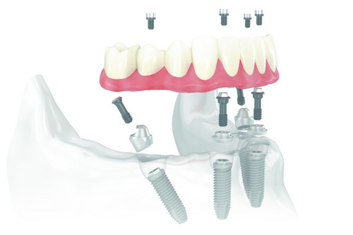 Illustration of dental a implant Scholes Perio