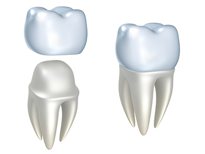 Is a Same-Day Crown the Way to Cover a Dental Gap from a Missing Tooth?