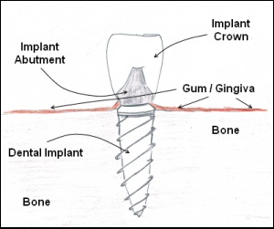 A diagram of how dental implant works.